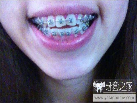 20120710 复诊上两根皮筋-lostkid88-牙套日记
