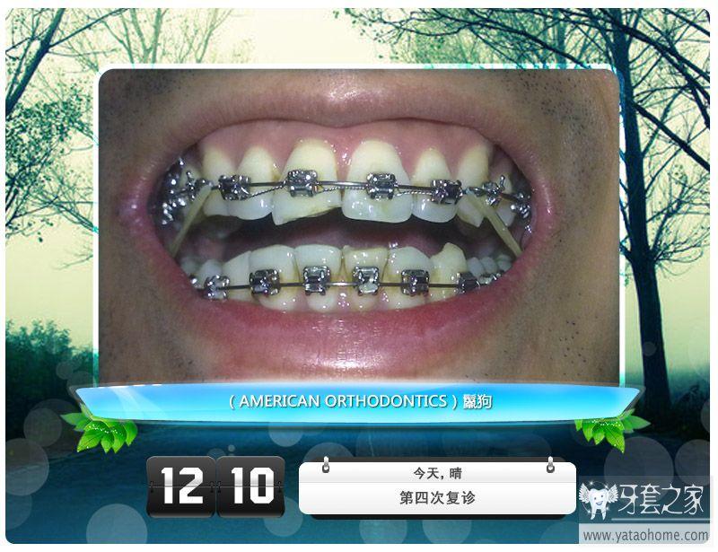第四次复诊 挂上皮筋了-(2)正在进行中的牙套自