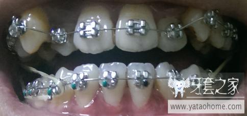 洗牙前和现在牙齿的对比-第二次复诊,牙套1个月并戒掉12年的烟 牙套
