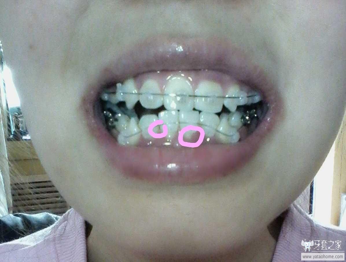 年轻人牙龈萎缩图片