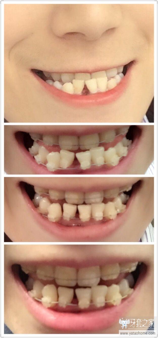 牙套宝宝的265天 牙套完成 中国最大的牙齿矫正论坛及精神家园,互助分享,一起加油,记录牙套日子,记录青春