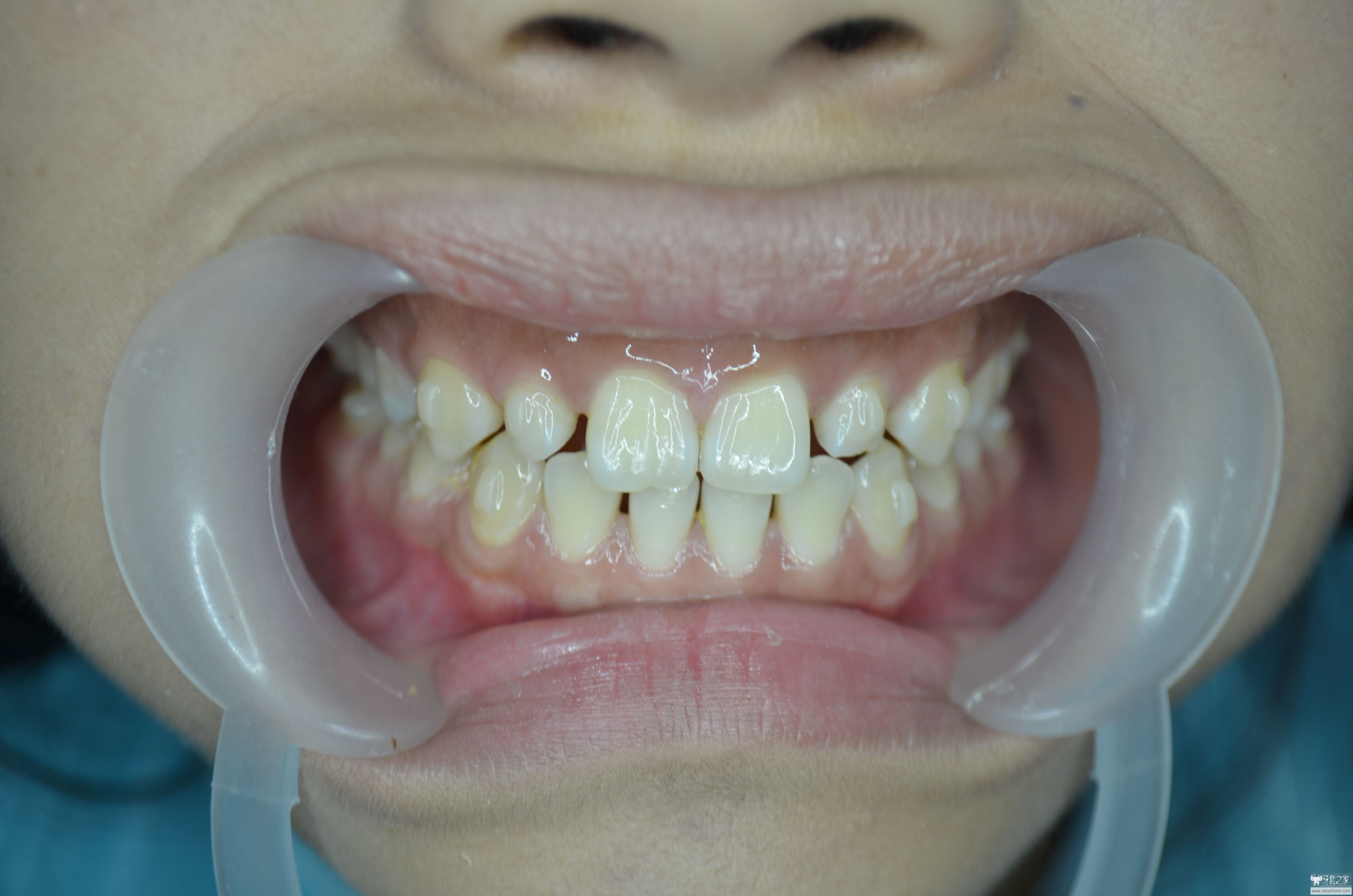 隐形矫正 瓷贴面 解决上前牙间隙