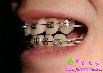 在进行中的牙套自拍图-牙套之家|牙齿矫正 矫正