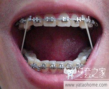 掉牙套,开始保持器生涯)-牙套日记(牙齿矫正正