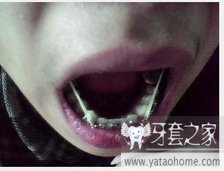 急急!我戴橡皮筋戴的牙齿松动,不平整了!-牙套